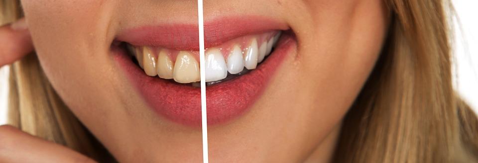 teeth - Copy